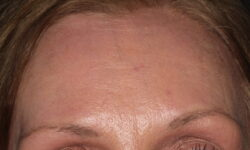 AS After Forehead