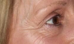 AS Before eyes