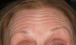 AS Before forehead